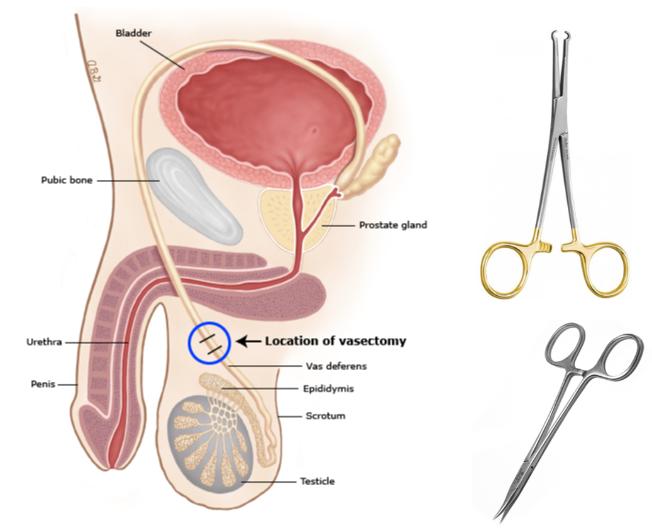 wazektomia gdańsk zabieg - narzędzia