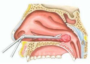 konchoplastyka